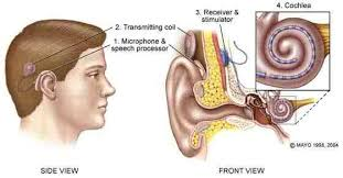 Cochlear implants have been a