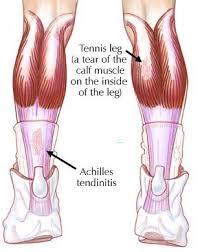 muscle calves