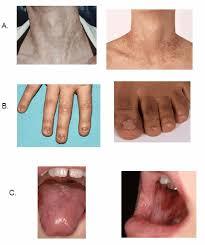 abnormal fingernails