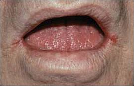 candida albicans mouth