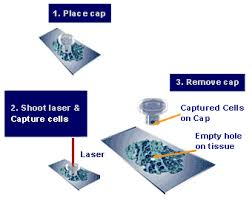 laser microdissection