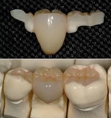 dental bridge pictures