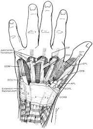 hand extensor
