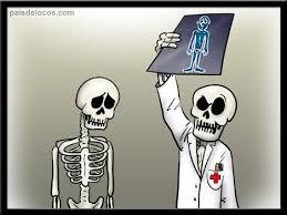 Yo nunca nunca .... Radiografia1