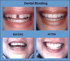 bonding on teeth