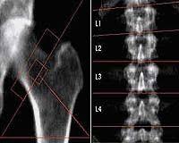 dexa scan images