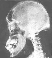acromegaly gigantism