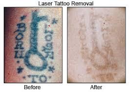 laser remove