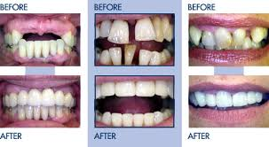 before and after braces photos