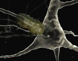 alzheimers plaques