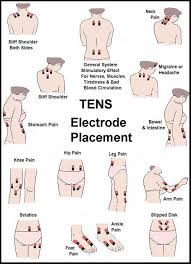 ems electrode placement