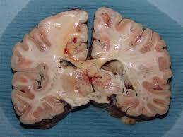coronal brain slices
