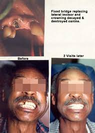 cantilever dental bridges