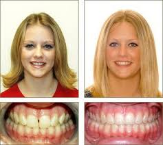 dental braces before and after