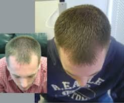 hair loss man