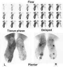 3 phase bone scan