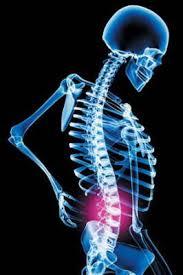 xray skeleton