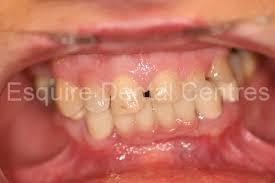 cavities on front teeth