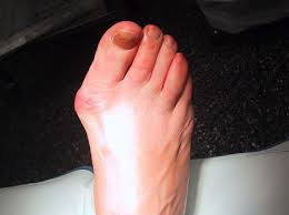 bunions shoes