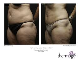 thermage body