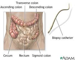 colonoscopy pictures