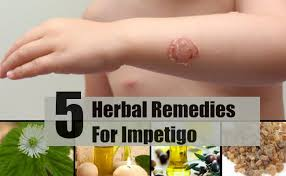 5 Effective Herbal Reme s For Impetigo Best Herbs For Impetigo