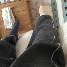 My fractured year A broken ankle diary – Darryl Chamberlain – Medium