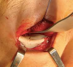 Orbital Floor Fracture Treatment by Use Of Polyetheretherketone Peek In Orbital Floor Fracture