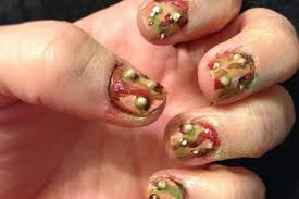 how to treat an infected fingernail how you can do it at home