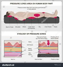 Bed Sores Pics by Man Pressure Sores Pressure Sores Area Stock Vector 507153964