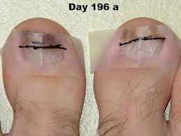 Toenail Separated From Nail Bed by Vitamin C Dhaa Serum Applied To Toenail Fungus Case Study