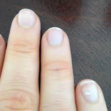 what do white spots on fingernails mean