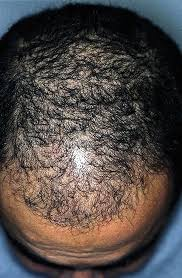 Propecia Shedding After 1 Year by Finasteride Treatment May Not Prevent Telogen Effluvium After
