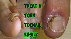 damaged nail bed broken toenail
