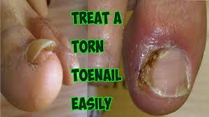 damaged nail bed broken toenail how to treat a torn toenail
