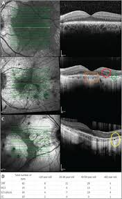Horizontal Spectral Domain Optical Coherence Tomography Scan A Normal Ellipsoid Zone