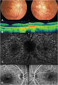 Christmas Tree Cataract Myotonic Dystrophy by Retinal Physician Dry Amd Masquerade Syndromes