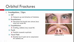 Orbital Floor Fracture With Entrapment by Blow Out Fractures Chatacteristics Youtube