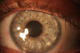 Push The Iris Back Into Place Then Replace Flap And Put Stitches In Or Some More Extreme Cases You Would Most Likely Need A Corneal Transplant