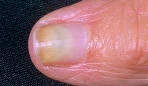 White Spots On Nail Beds by Nail Abnormalities A Visual Guide Health Tools Nhs Choices