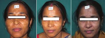 Woods Lamp Examination Melasma by A Comparison Of Low Fluence 1064 Nm Q Switched Nd Yag Laser With