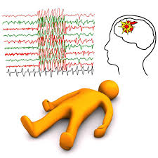 Triggers Of Seizures Epilepsy Foundation