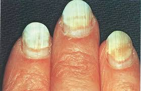 White Spots On Nail Beds by When Nails Separate Health Nails Magazine
