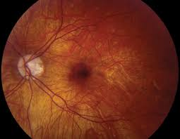 A Small Subfoveal Hemorrhage Due To Myopia That Would Be Appropriate For Observation