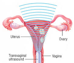 Uterus Lining Shedding All At Once by Dysfunctional Uterine Bleeding Harvard Health