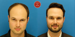 Propecia Shedding After 1 Year by Hair Transplant Photo 5266 Grafts Hasson U0026 Wong