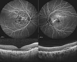 Drastic Effect Of Ranibizumab On Choroidal Neovascularization In Idiopathic Angioid Streaks