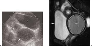 Shedding Of Uterine Lining Before Period by Amenorrhea In The Adolescent Or Young Radiology Key