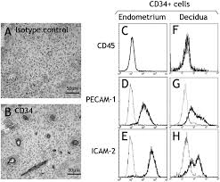 Uterine Lining Shedding After C Section by Immature Nk Cells Capable Of Producing Il 22 Are Present In