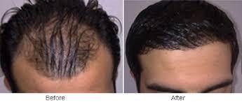No Shedding after Hair Transplant